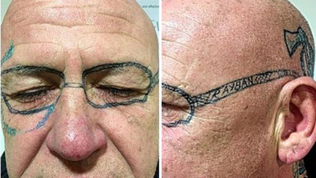 Dos años con unas gafas tatuadas tras una noche loca