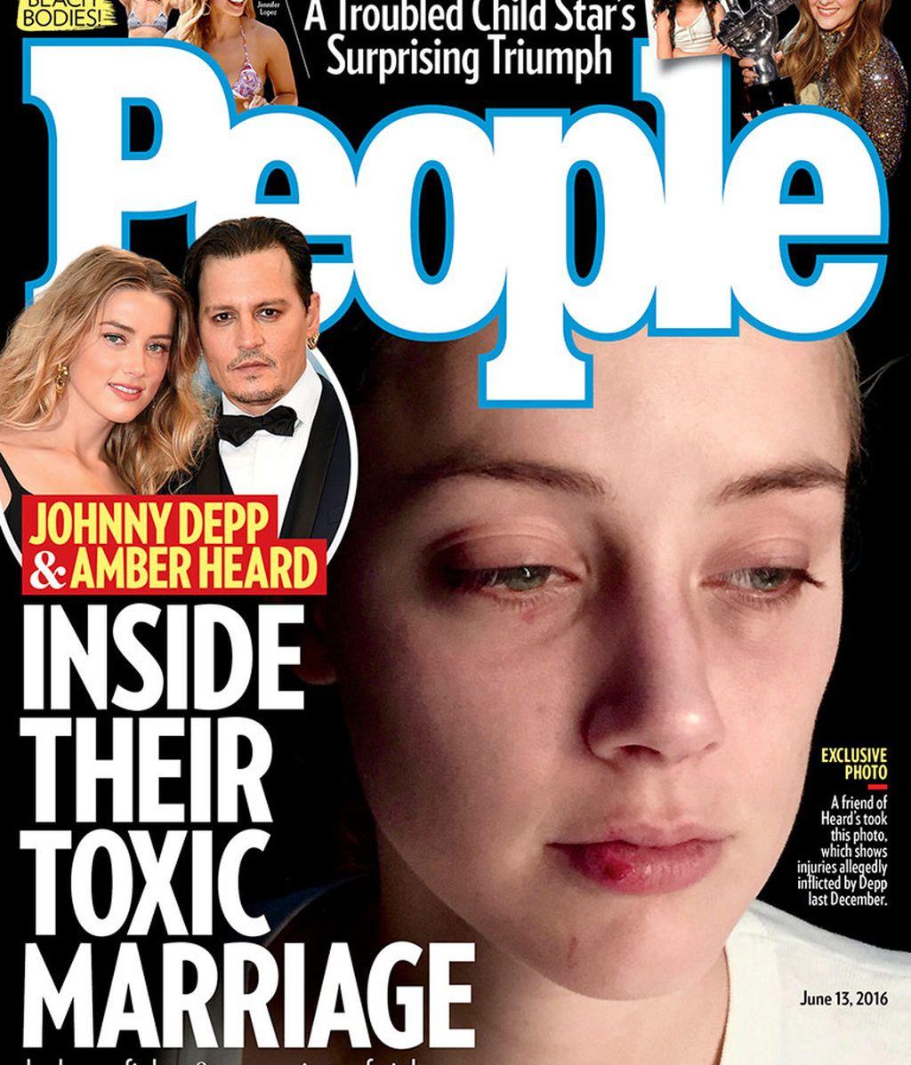 La portada de la revista 'People' recoge las fotografías del rostro magullado de Amber Heard
