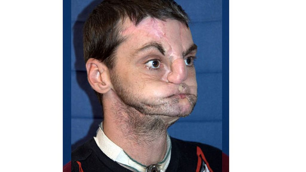 La evolución de Richard Lee Norris después de un trasplante de cara