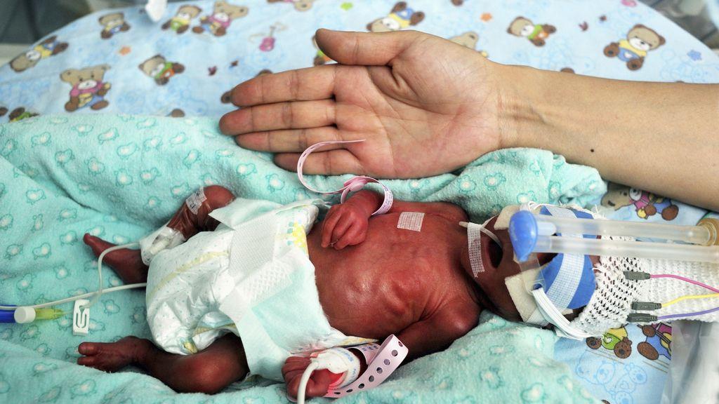 Nace un bebé del tamaño de una mano