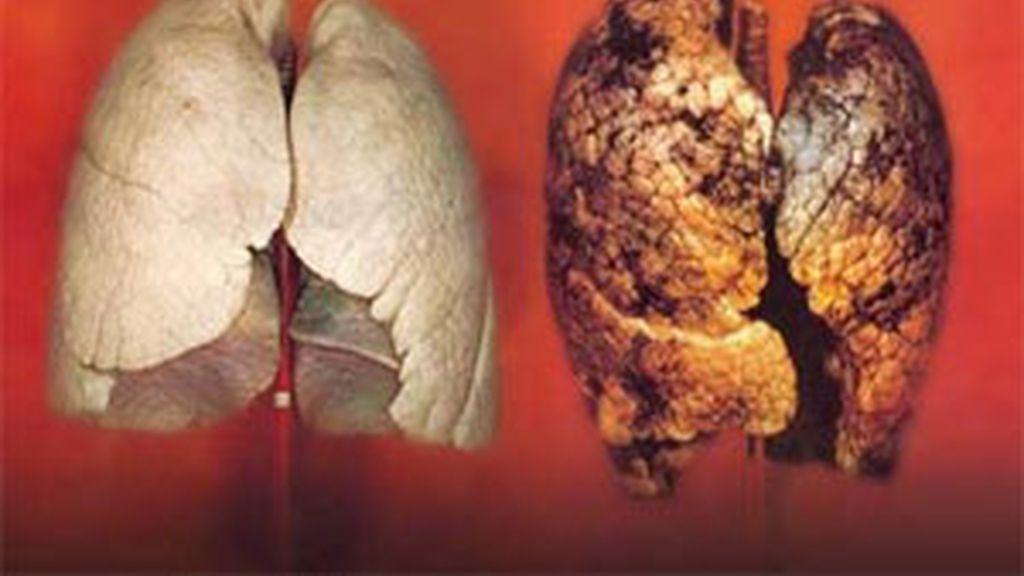 El cáncer de pulmón es uno de los más frecuentes en nuestro país. En la imagen puede observarse la diferencia entre un pulmón sano y un pulmón afectado por el humo de los cigarrillos.