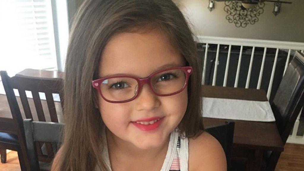 Faith May, 5 años, estaba deprimida por la cicatriz de su cabeza por la operación