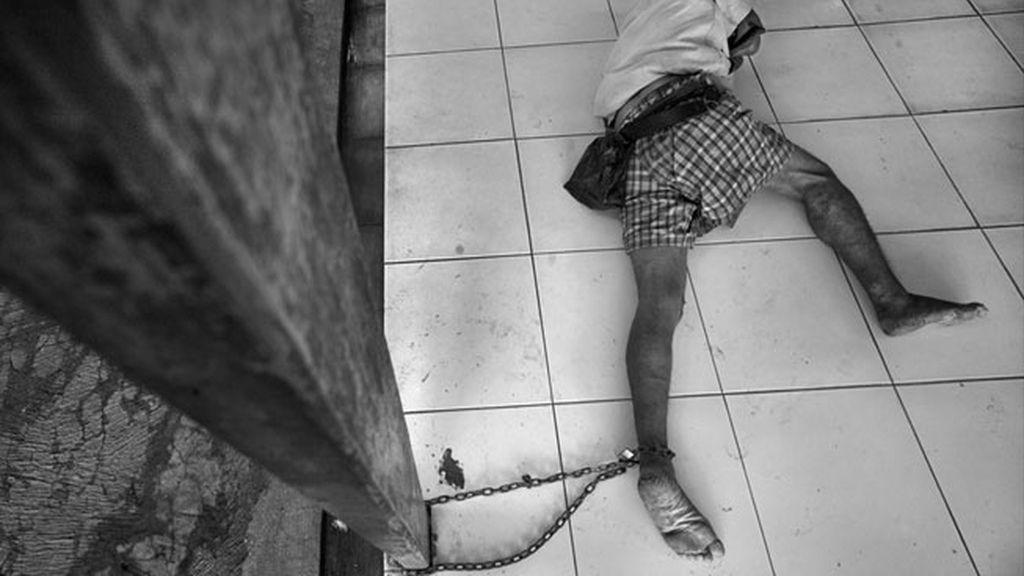 Paciente encadenado en centro de rehabilitación