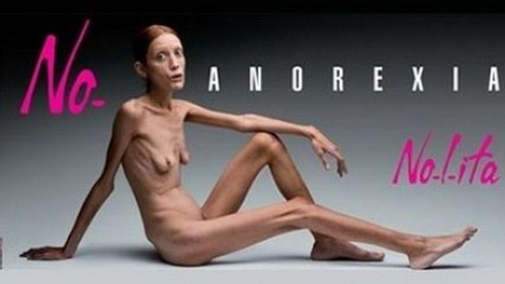 campaña contra anorexia, anorexia, trastorno alimentario, modelos anorexicas