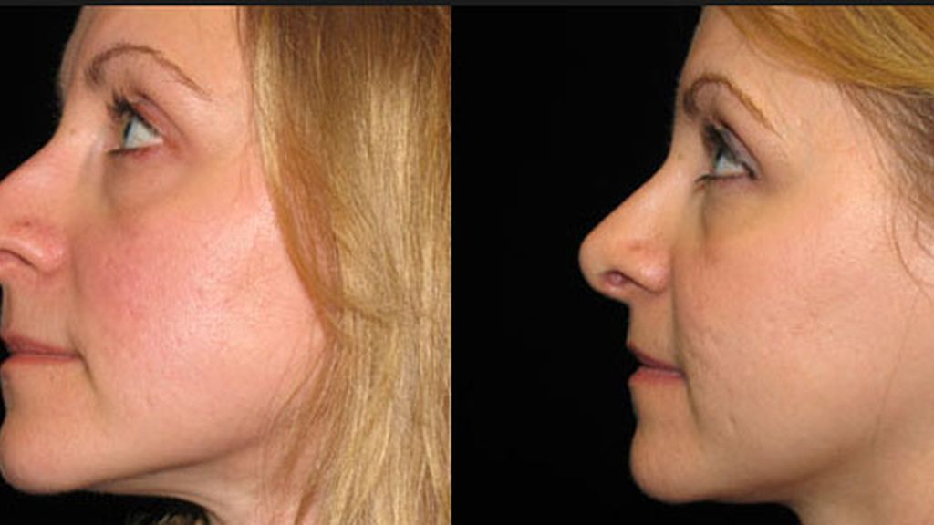 cirugía plástica,rinoplastia,España cirugía estética, nariz