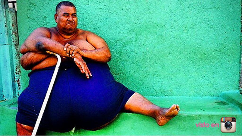 """""""Luis, 235 kilos, padece diabetes como el 30% de la población en Nicaragua"""