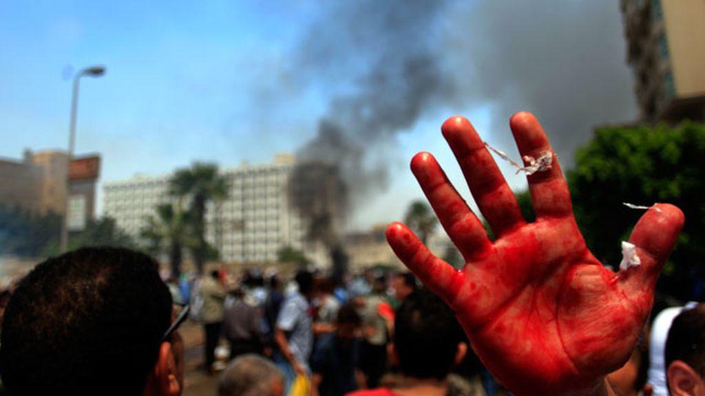 Protesta con sangre