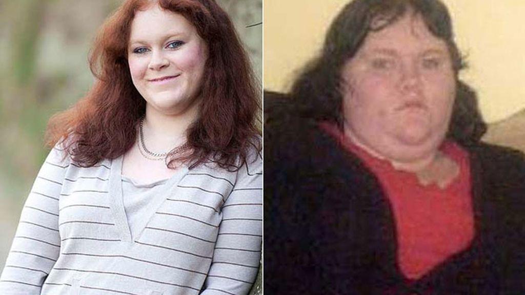 Jeniffer Hogarth pierde 63 kilos en un año gracias a la banda gástrica