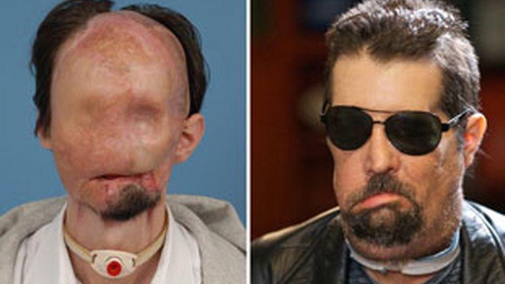 Dallas Wiens compareció con gafas oscuras y una poblada barba, pero con una cara nueva.