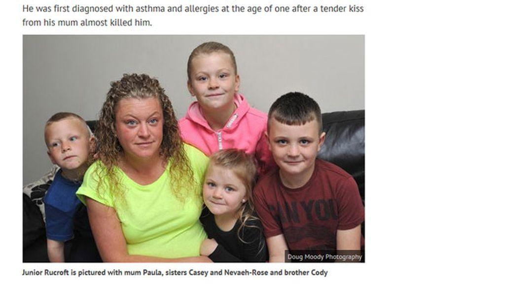 Un niño de 7 años, alérgico a sí mismo