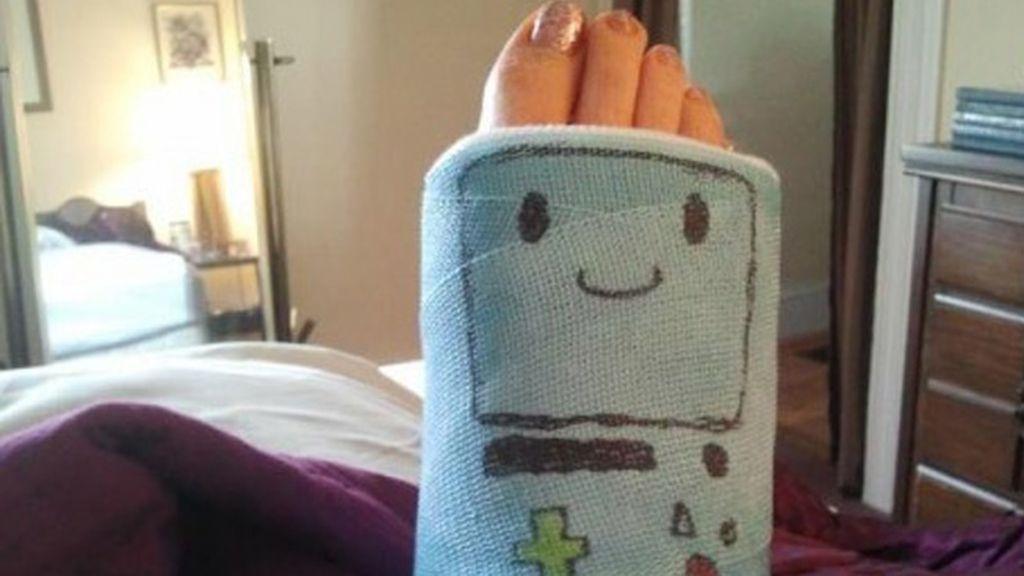 Si te rompes una pierna... ¡sonríe!