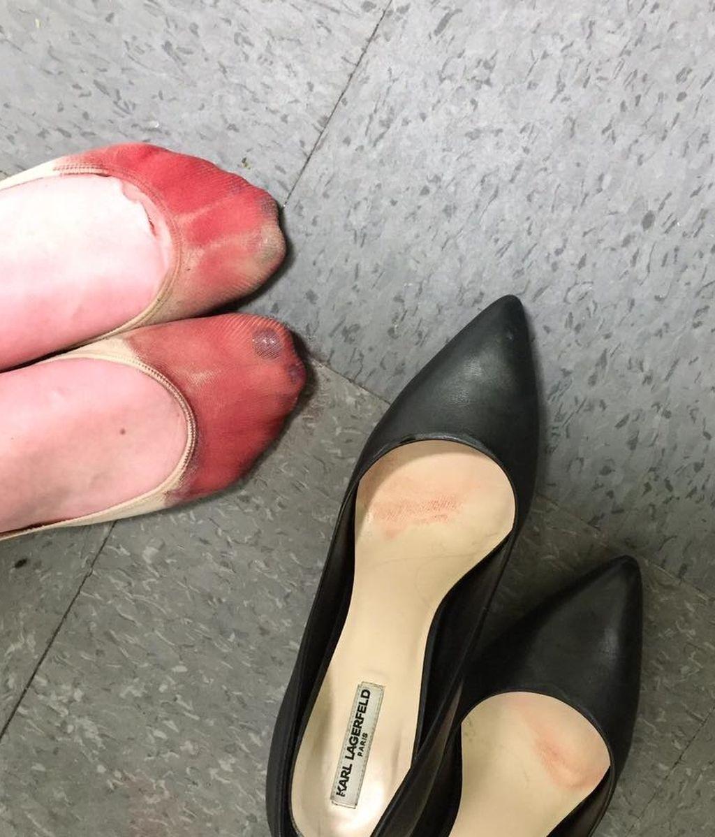 Los pies tras una jornada laboral