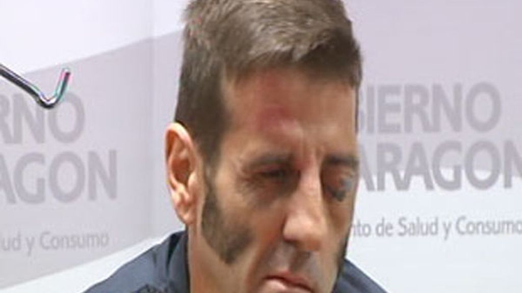 El torero Juan José Padilla sale del hospital