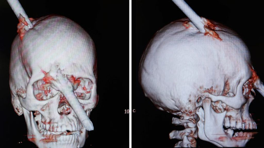 Un obrero brasileño sobrevive a una perforación craneal con una enorme barra de acero