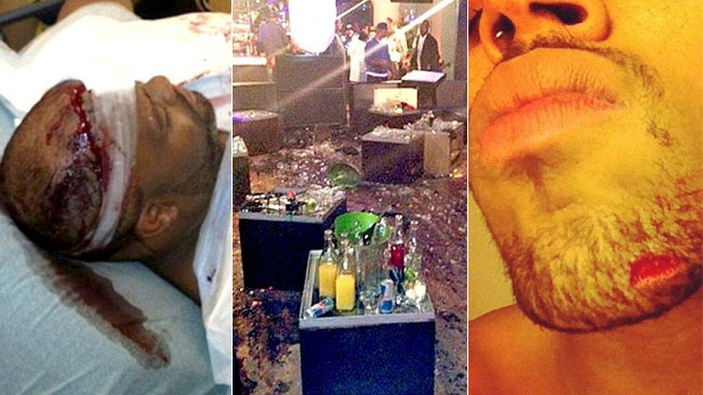 Chris Brown y su guardaespaldas, heridos