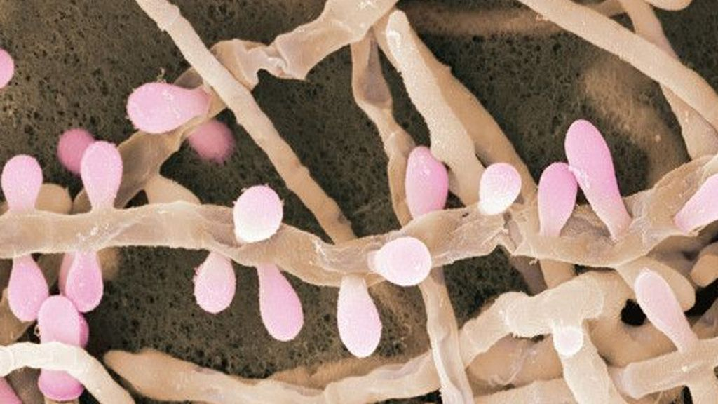 Impresionantes imágenes de los microbios que nos rodean