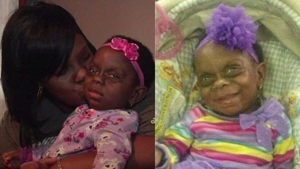 Un bebé enfermo sufre innumerables burlas, después de que su madre subiera una foto a Facebook