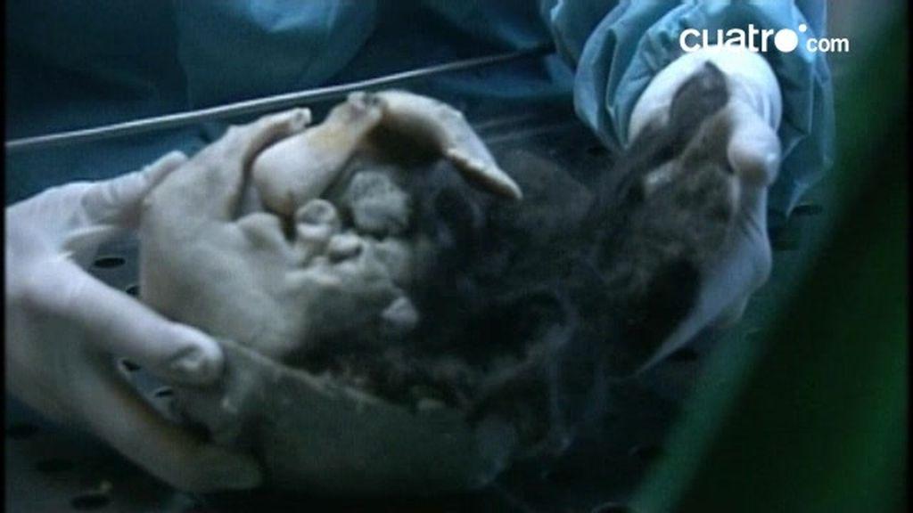 El niño embarazado. ¿Qué alojaba el niño en su abdomen?