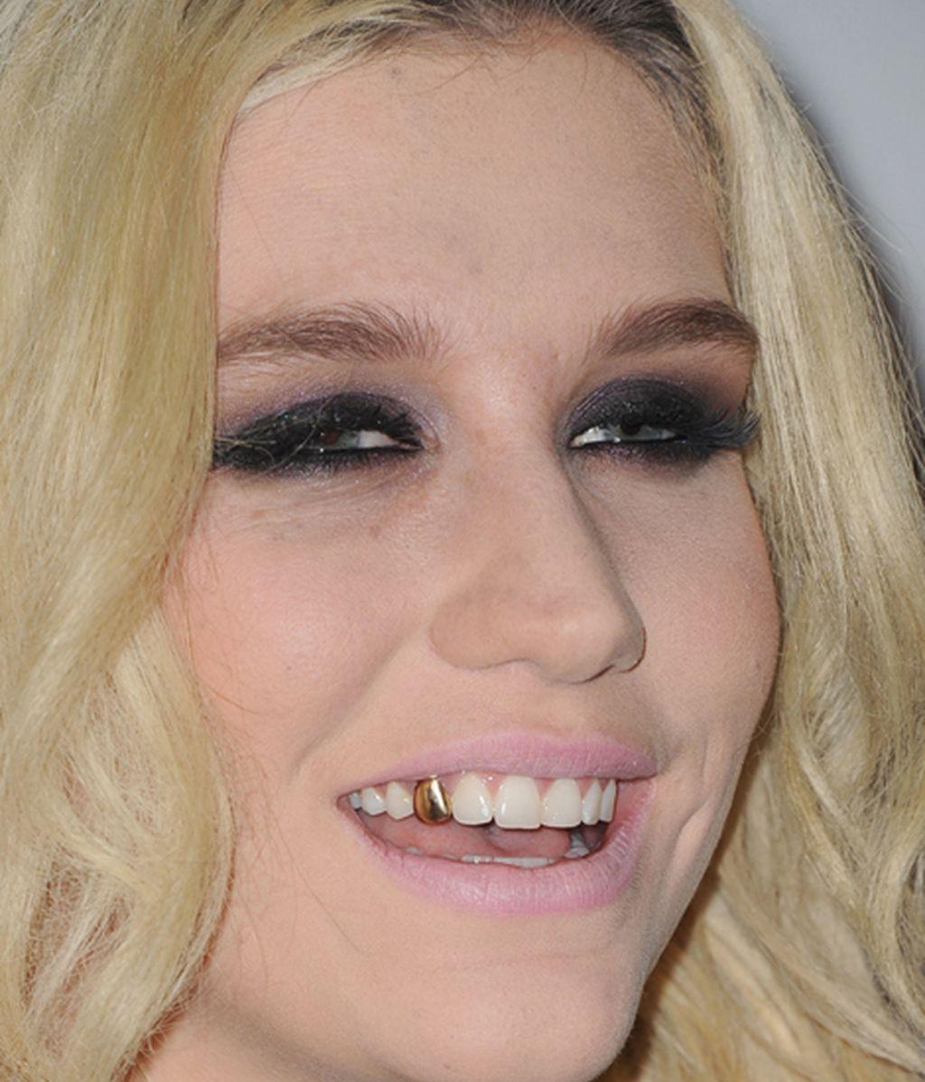 La cantante y actriz Kesha, durante el concierto anual 'Jingle Ball' de 'KIIS FM'