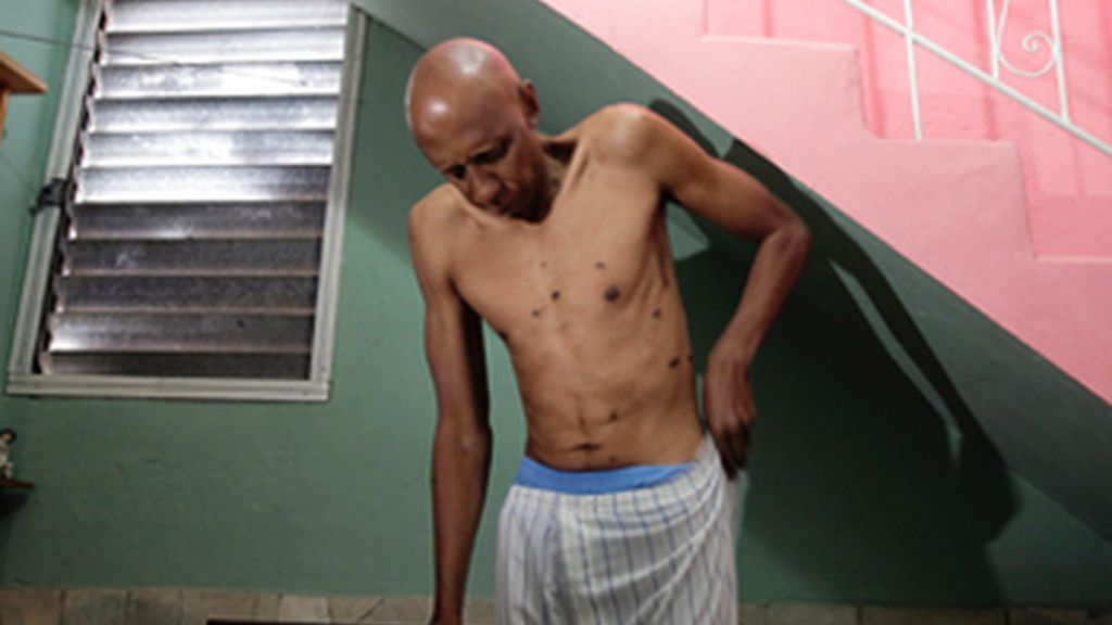 Ingresan en cuidados intensivos al disidente cubano Guillermo Fariñas tras perder el conocimiento