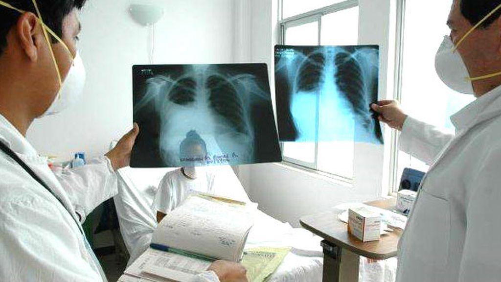 La tuberculosis es una infección bacteriana que afecta a los pulmones