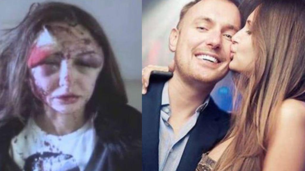 En busca y captura tras desfigurar el rostro a su novia, la modelo Alexandra Sereda