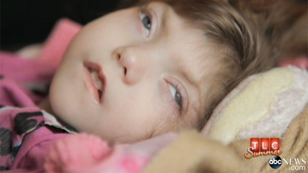 La extraña enfermedad de una niña de 8 años podría ser la llave de la inmortalidad biológica