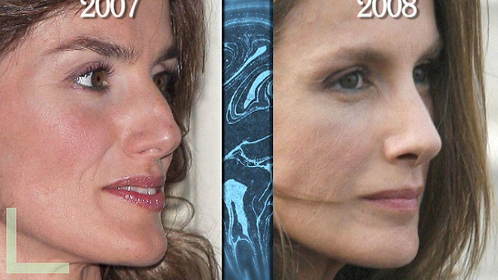 Cirugía estética: ¿obsesión o necesidad?