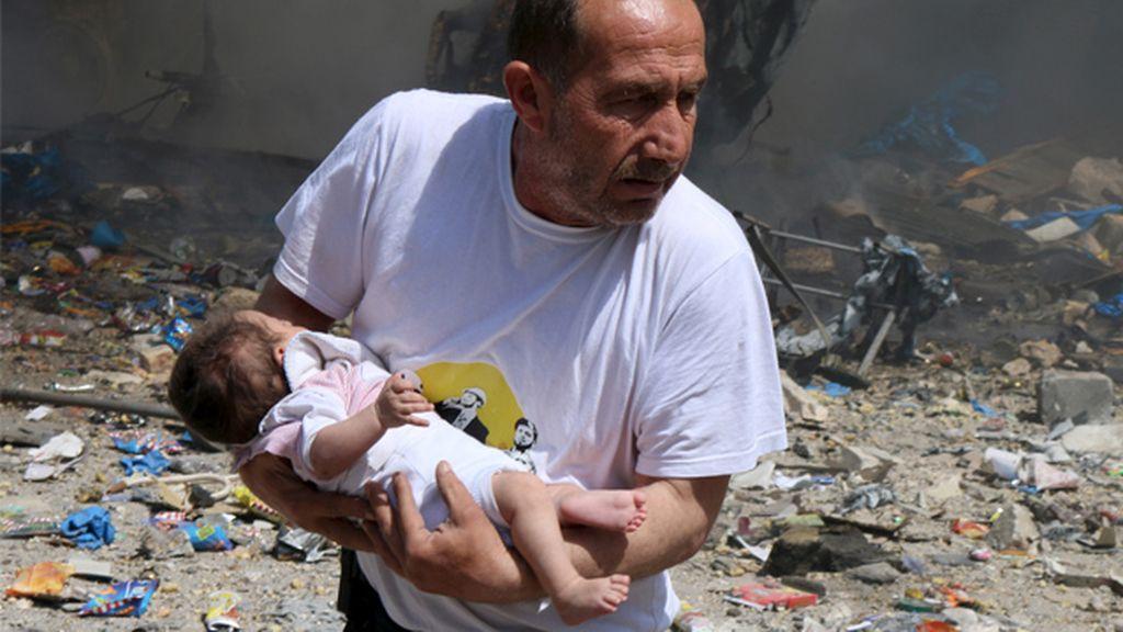 Los niños han sido los que más han sufrido la guerra en Siria