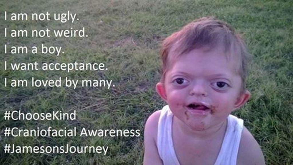 Lucha por la dignidad de su hijo enfermo