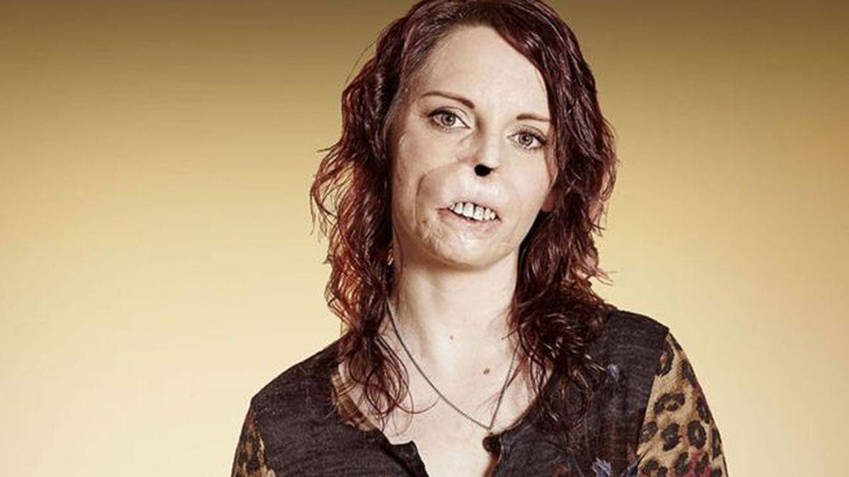 Se erige como un ejemplo de superación tras vencer a la desfiguración de su rostro