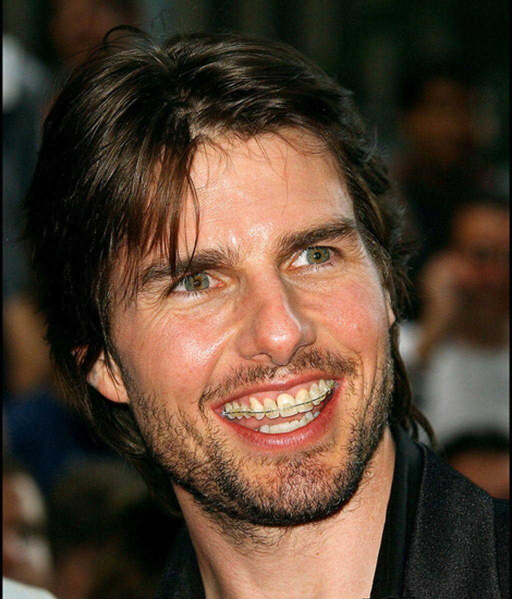 Tom Cruise, mostrando sin pudor su corrector de dientes