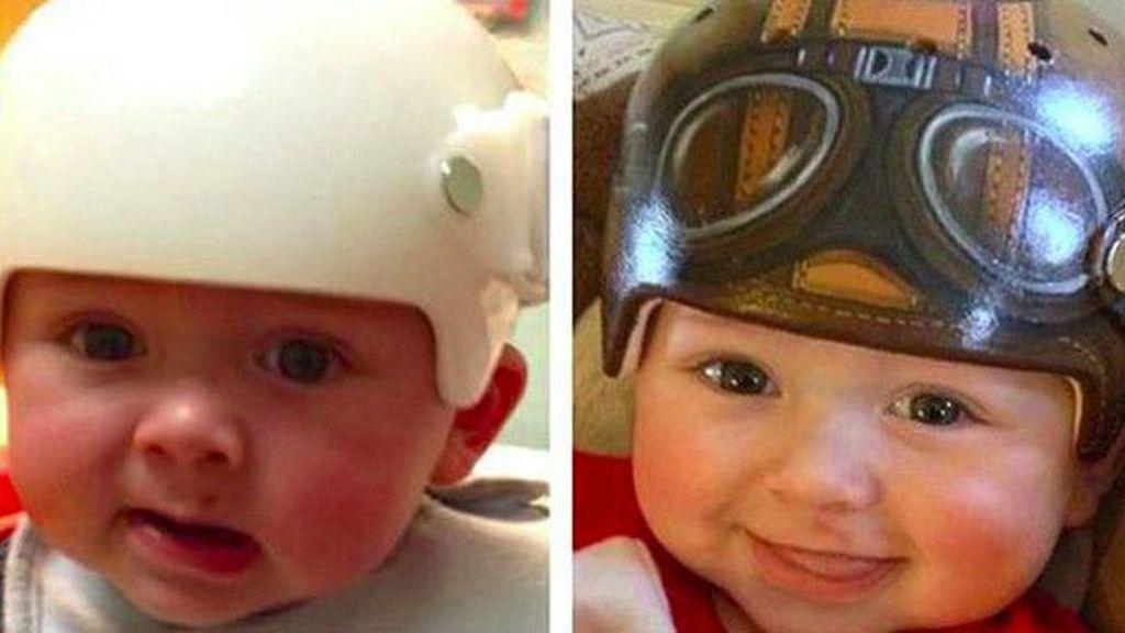 Los cascos médicos más divertidos
