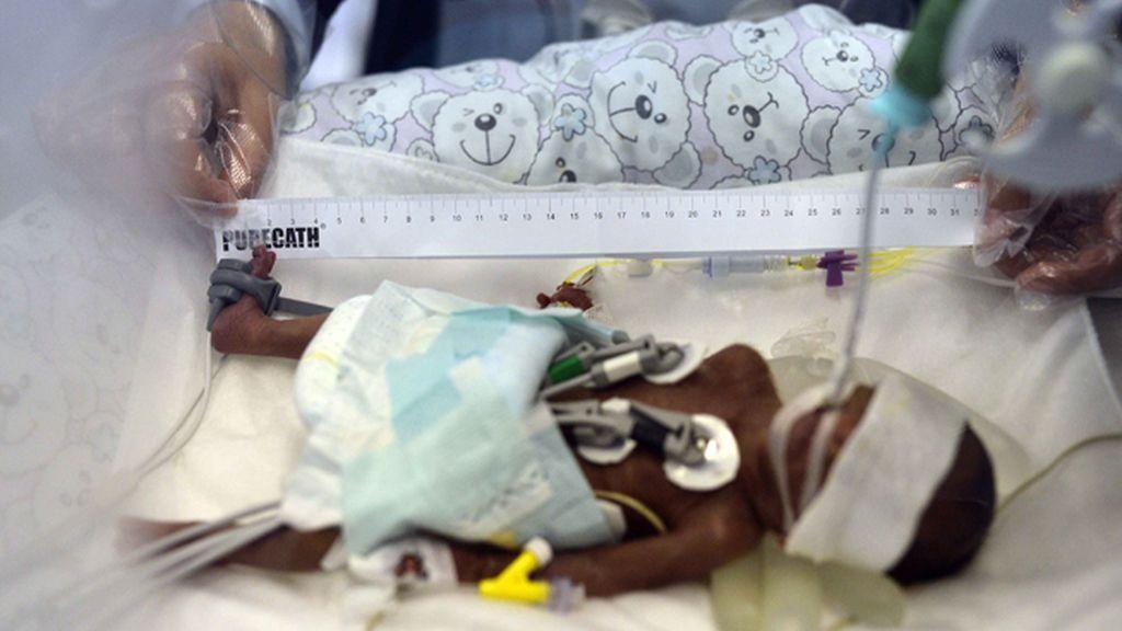 Un bebé de 0,75 kilogramos nace prematuramente en China