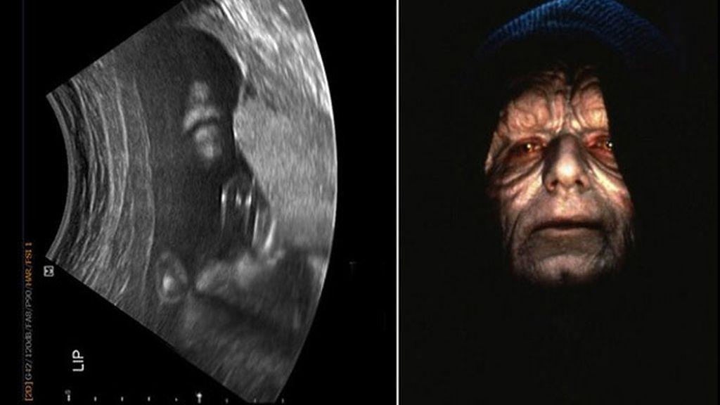 El emperador de Star Wars aparece en la ecografía de un bebé