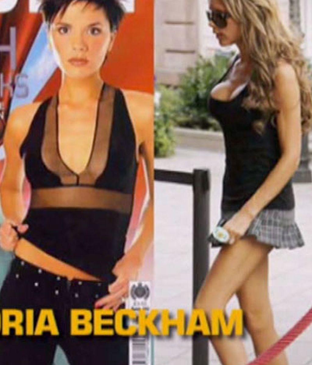 Vicky Beckham se quita la silicona