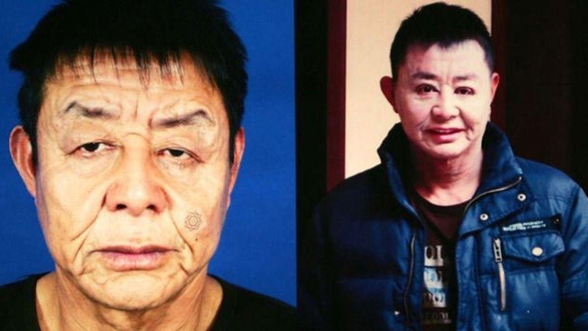 Suan Jianhua, que sufre una enfermedad que afecta su piel, se ha sometido a la primera de una serie de operaciones para mejorar su aspecto. Tiene 29 años y aparenta 50. Foto IBER-PRESS