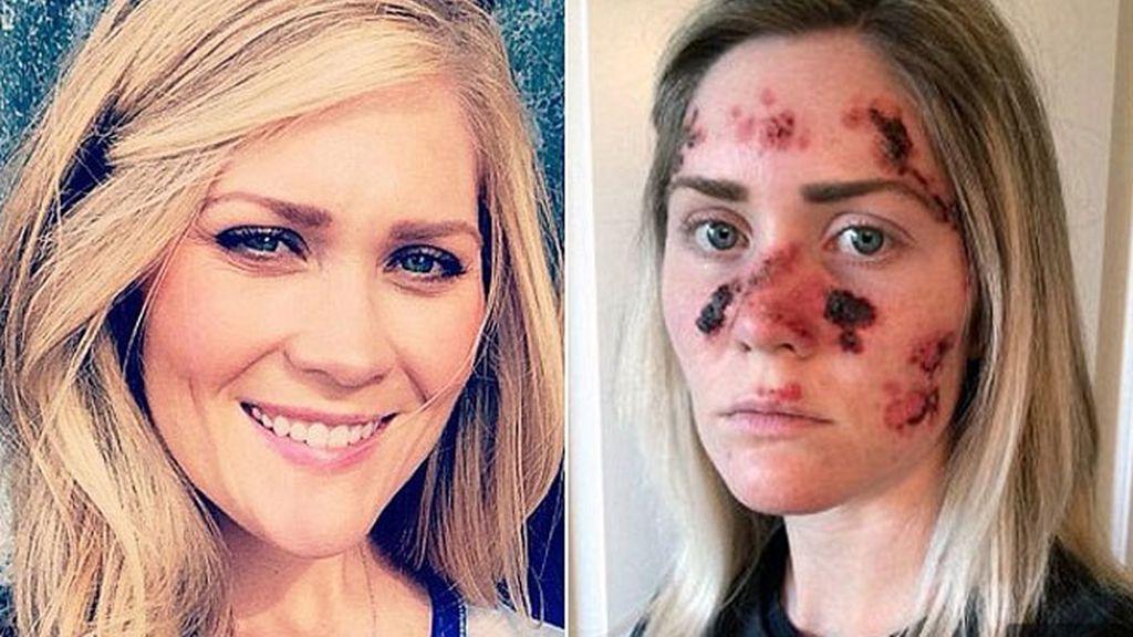 Melanoma,cáncer de piel,Tawny Willoughby