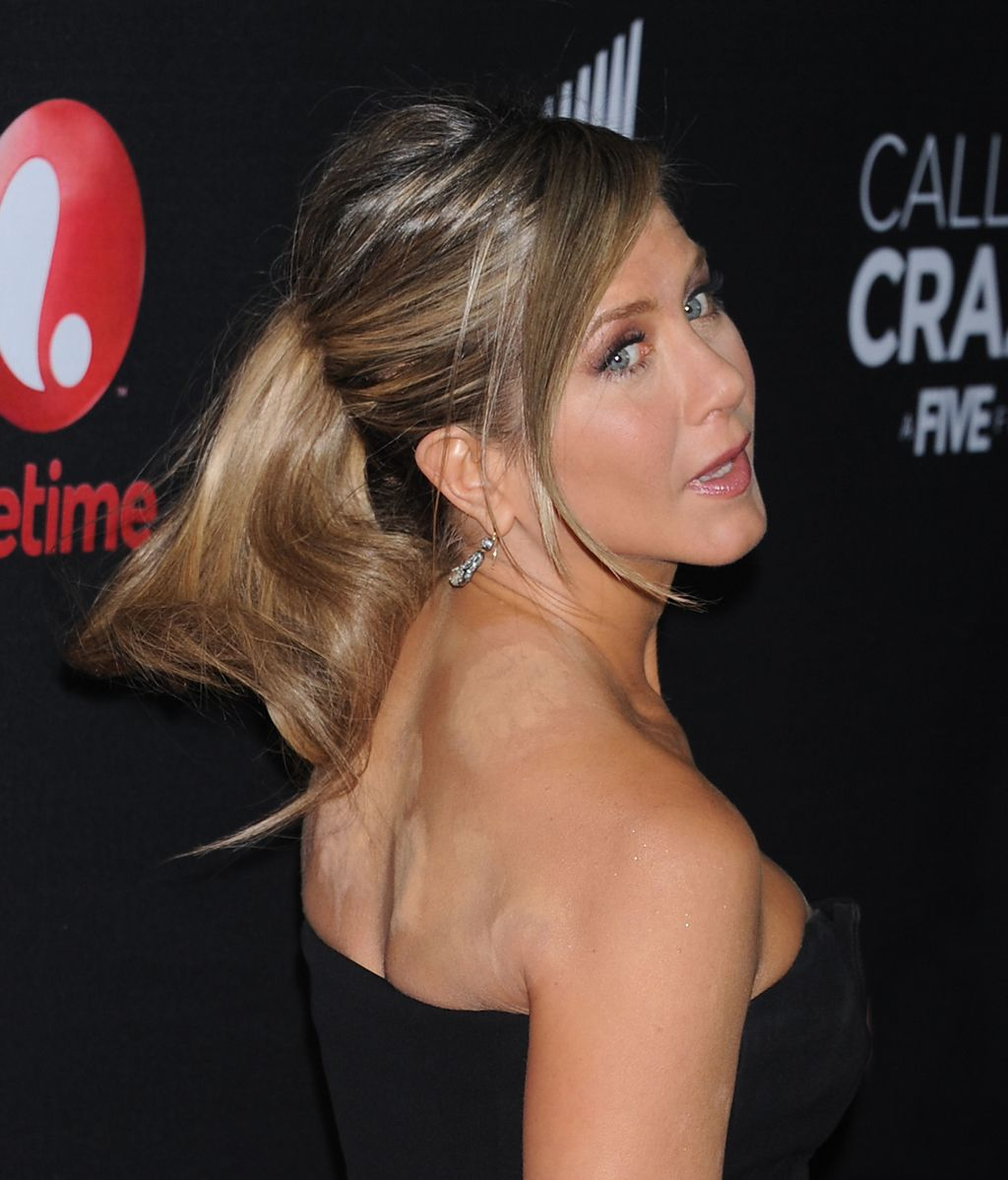 Jennifer Aniston con marcas del 'cupping'