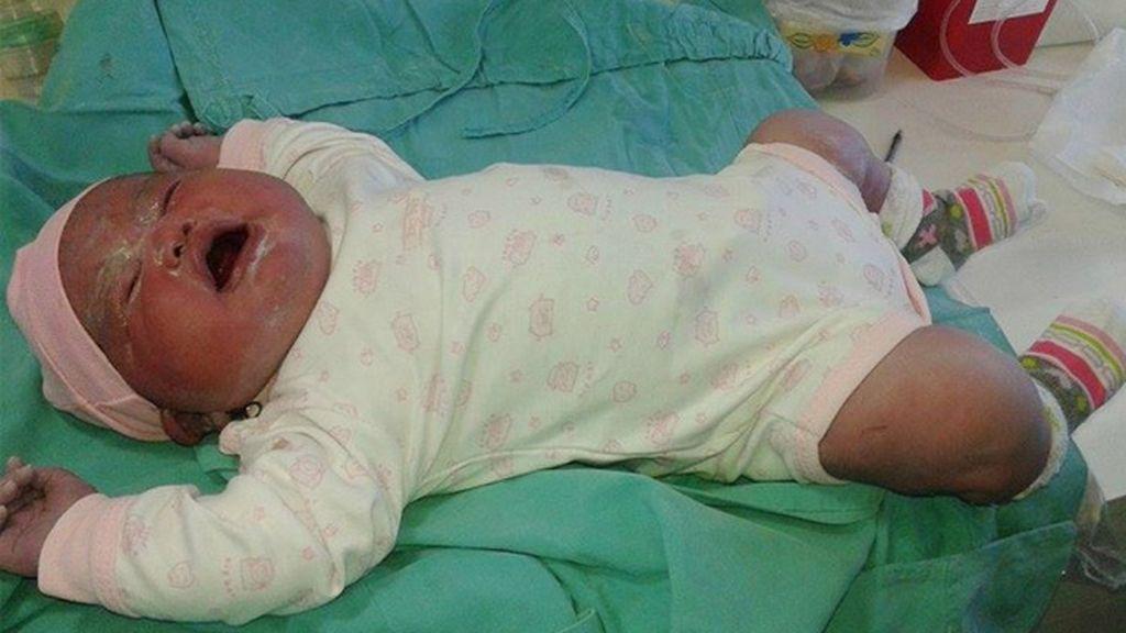 Olivia, la bebé gigante de la Patagonia argentina