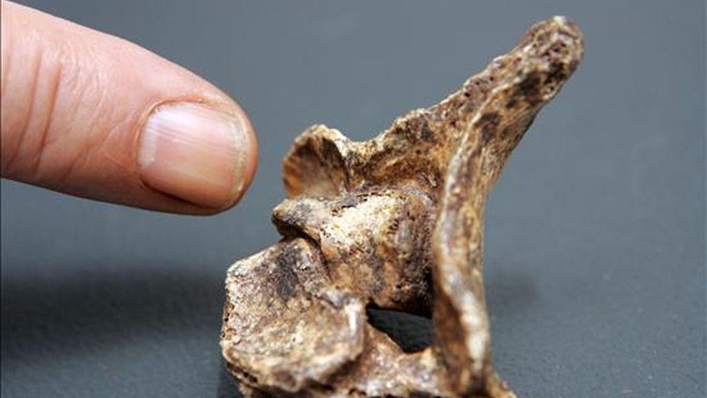 El paleopatólogo riojano Julio Martínez Flórez, señala con el dedo el primer hallazgo de una vértebra perteneciente a un hombre del Neolítico que sufrió un cáncer óseo dentro de la médula espinal, dado que, según sus datos, no hay constancia de este tipo de tumor en este periodo histórico. EFE