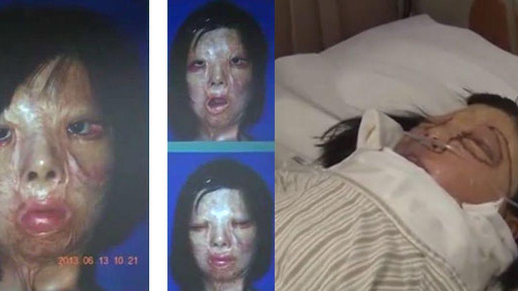 adolescente china,trasplante de cara,Xu Jianmei,desfigurada,