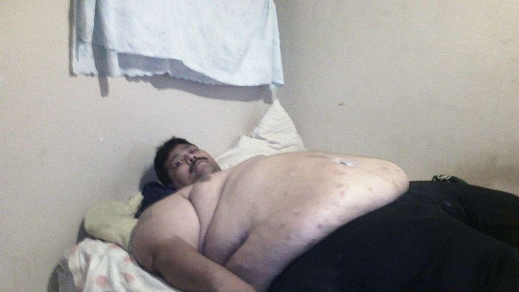 El hombre más obeso del mundo, pendiente de una operación que le salve la vida