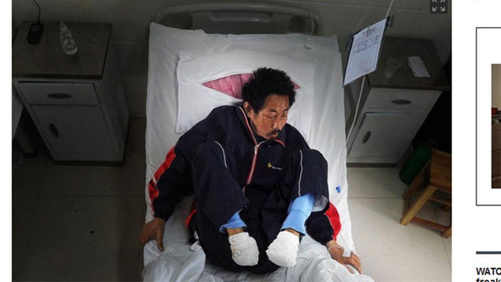 Liu Dunhe, amputación