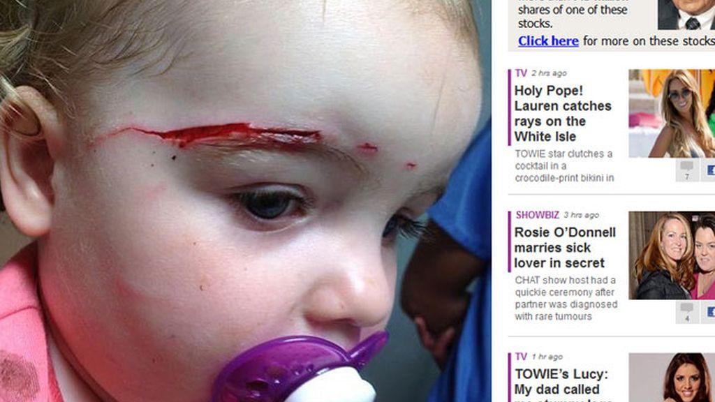 Un bebé es atacado por un gato