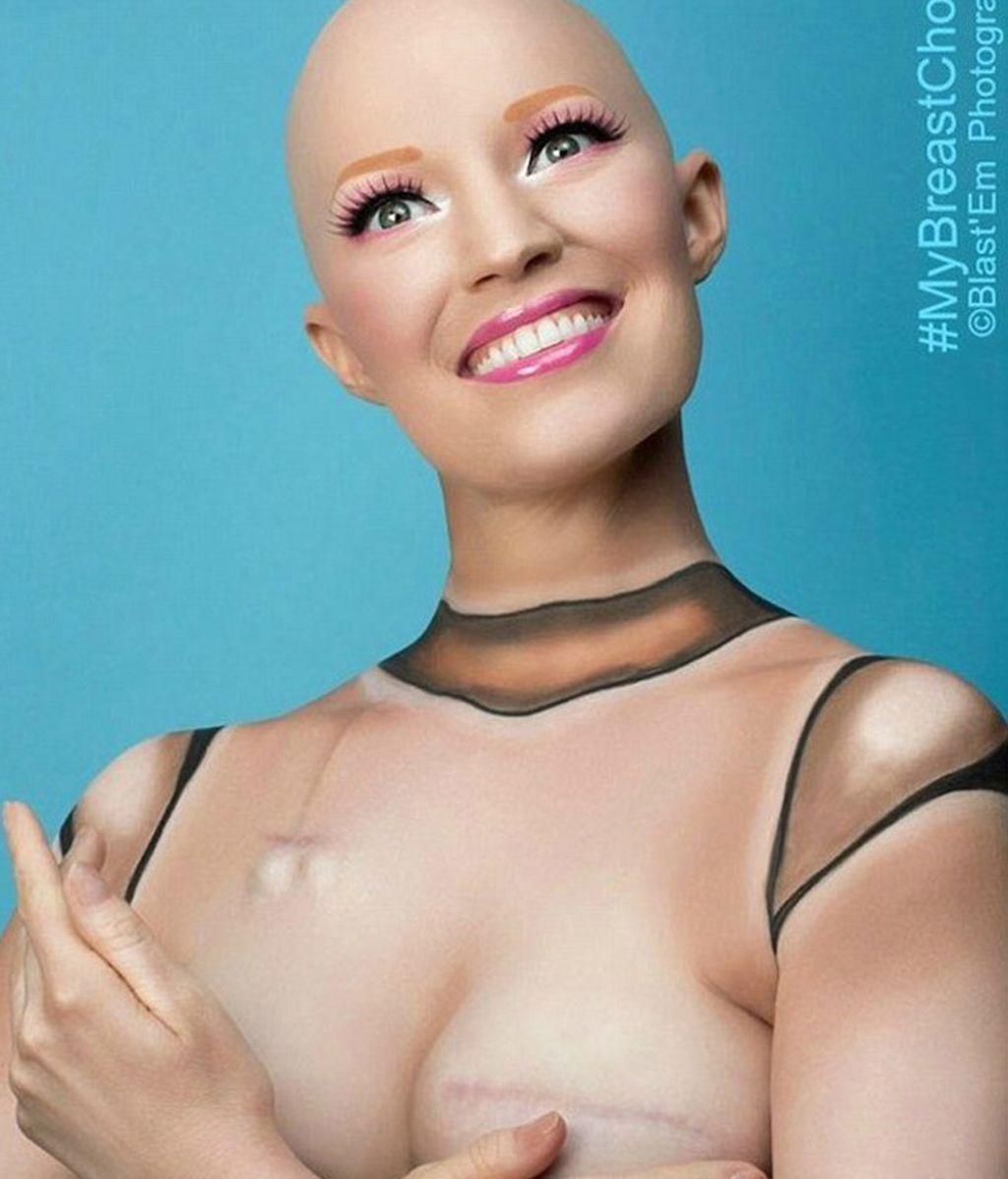 Cómo esta modelo superó el cáncer de mama usando el humor