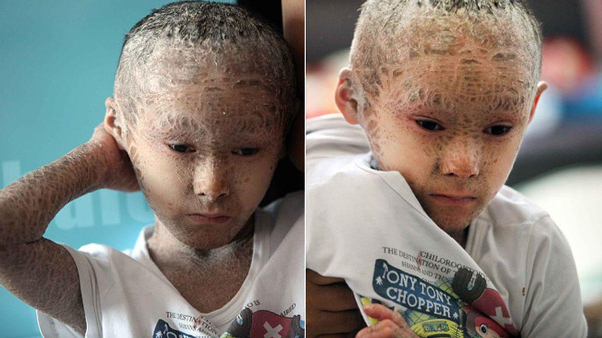 Pan, el niño con escamas por sufrir ictiosis