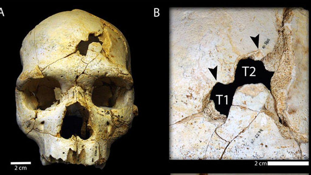 Evidencias de asesinato en un cráneo de hace 430.000 años