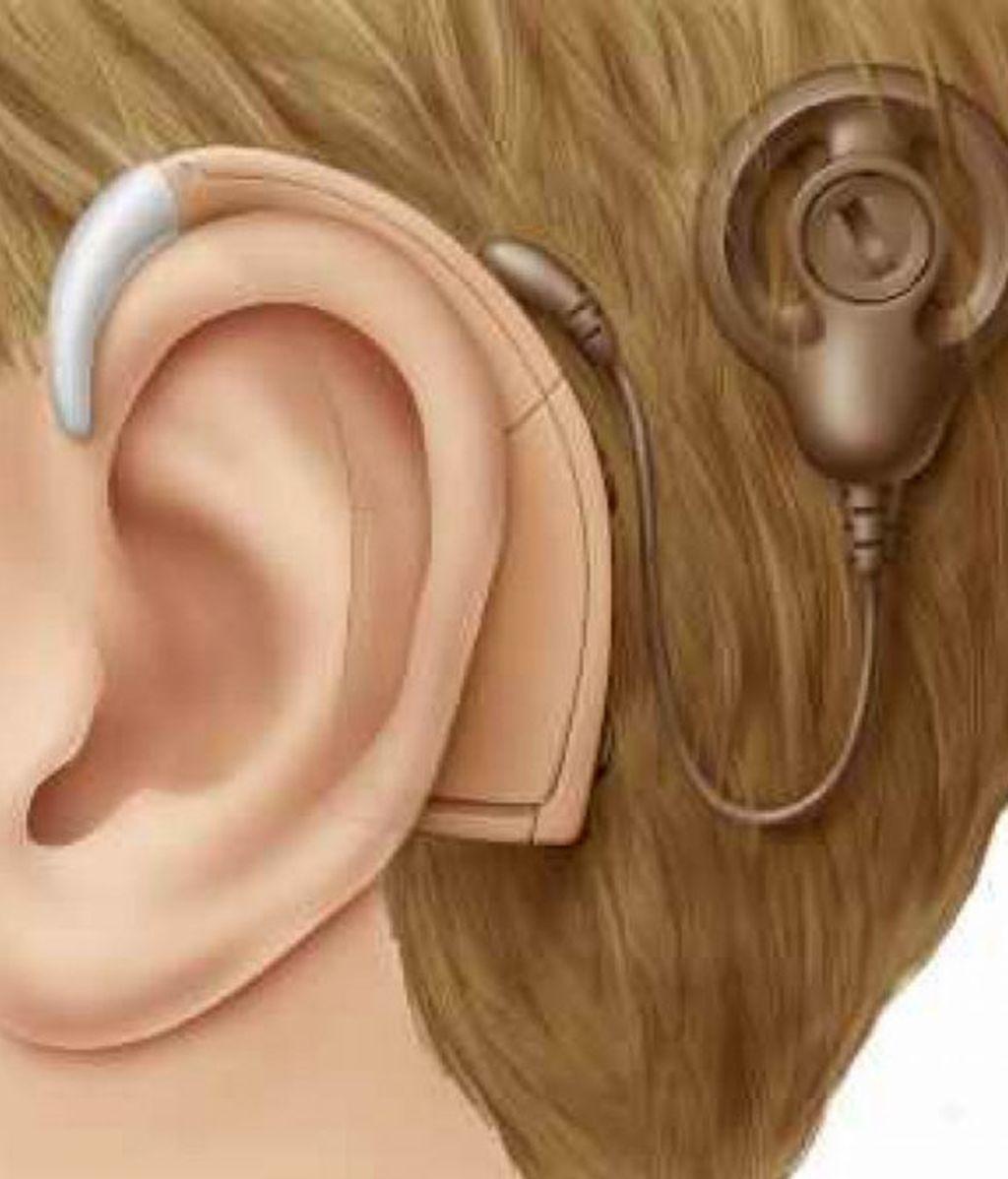 aparato sordo, implante coclear, sordos