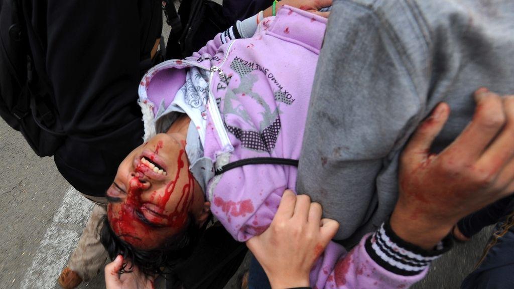 Un opositor recibe la ayuda de sus compañeros tras resultar herido durante los enfrentamientos con las fuerzas de seguridad egipcias, en El Cairo